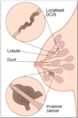 Diagram of breast lumps